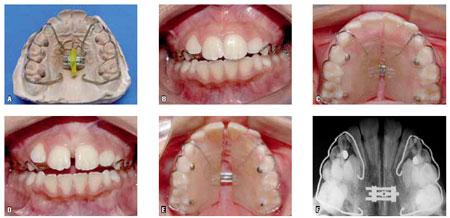 Hàm chỉnh nha tháo lắp Bảo Đảm hàm răng ĐỀU & ĐẸP tự nhiên 6