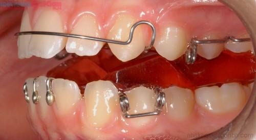 Hàm chỉnh nha tháo lắp Bảo Đảm hàm răng ĐỀU & ĐẸP tự nhiên 4