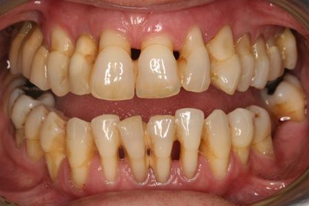 Nguyên nhân răng thưa và dài ra do bị viêm nướu