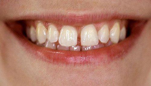 Cần tìm hiểu nguyên nhân tại sao răng bị thưa