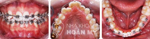 Niềng răng cho trẻ 24