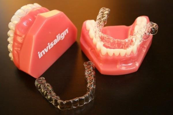 Niềng răng không mắc cài Invisalign & eCligner bí mật nụ cười ❛SAO❜ 3