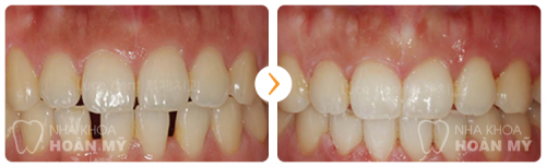 Hàm răng thưa có nên niềng răng hay không 11