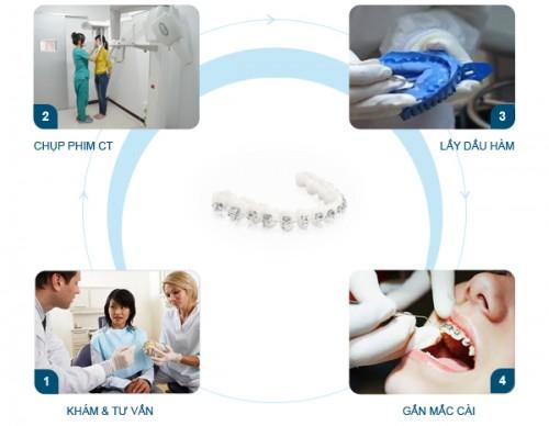 5 bước trong quy trình niềng răng Hô, Móm, Khểnh chuẩn Quốc tế 1
