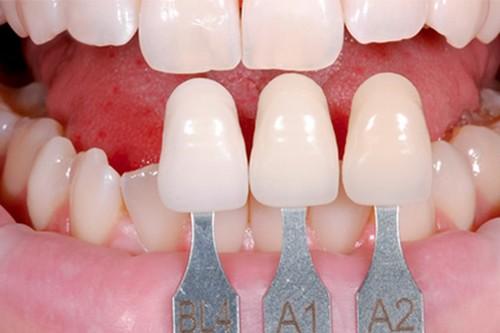 Chỉnh 2 răng cửa bị vẩu (vổ) cho hàm răng ĐẸP như ý chỉ sau 2 ngày 2