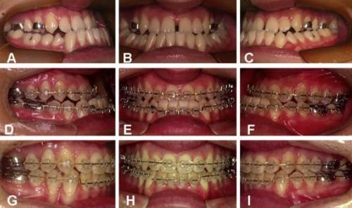 5 bước trong quy trình niềng răng Hô, Móm, Khểnh chuẩn Quốc tế 2