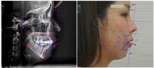 Phẫu thuật hàm vẩu là cách duy nhất có thể tác động được đến xương hàm giúp chữa vẩu do hàm