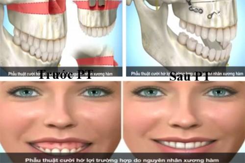 Cười hở lợi thì sao & cách điều trị VĨNH VIỄN như thế nào hiệu quả? - ảnh 1