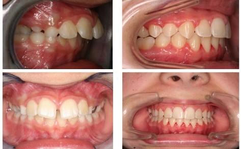 Niềng răng hô áp dụng cho trường hợp nào?