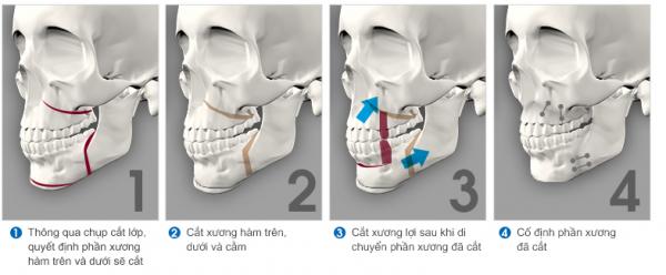 Phẫu thuật hàm điều trị răng hô vẩu tại Paris