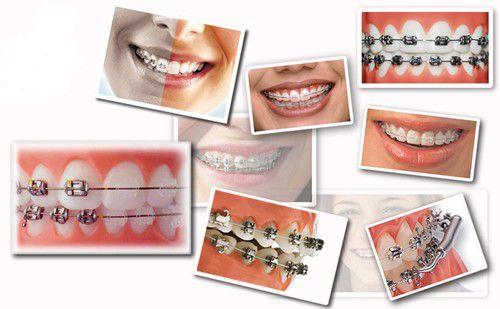 Niềng răng giá rẻ cũng phụ thuộc vào loại mắc cài bạn chọn