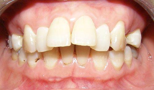 5 vấn đề bạn cần quan tâm khi niềng răng hô hàm trên【Giải Đáp】1