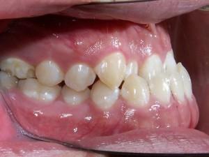 Niềng răng móm - giải pháp chữa móm toàn diện? 7654