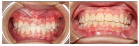 Bị móm có niềng răng được không, hiệu quả thế nào? 7