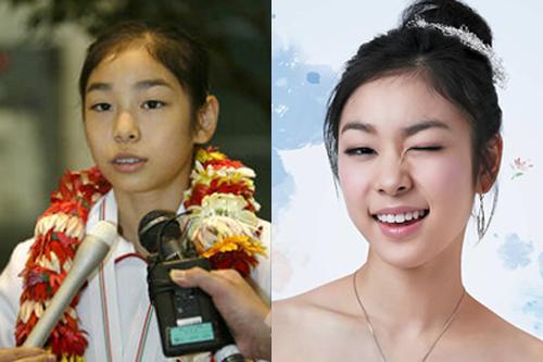 Kim Yuna - minh chứng cho niềng răng đẹp cỡ nào