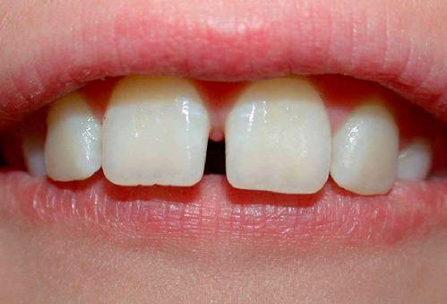 Các kiểu răng cửa to, hô, dài và thưa | Cách chỉnh sửa hiệu quả nhất 1