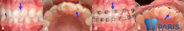 2 Cách chỉnh răng móm hiệu quả Triệt Để và độ bền Trọn Đời 3