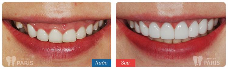 Răng xấu sửa như thế nào? ❝Khắc Phục❞ cho từng trường hợp cụ thể 5