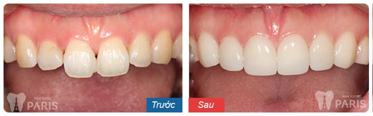 Răng xấu sửa như thế nào? ❝Khắc Phục❞ cho từng trường hợp cụ thể 10