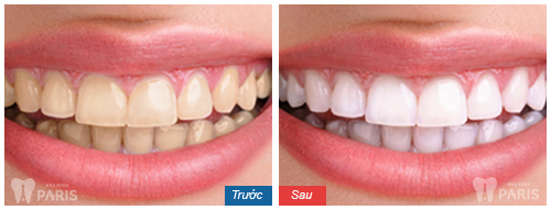 Răng xấu sửa như thế nào? ❝Khắc Phục❞ cho từng trường hợp cụ thể 1