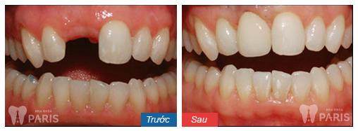 Răng xấu sửa như thế nào? ❝Khắc Phục❞ cho từng trường hợp cụ thể 2