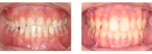 2 Cách chỉnh răng móm hiệu quả Triệt Để và độ bền Trọn Đời 6