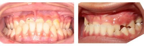2 Cách chỉnh răng móm hiệu quả Triệt Để và độ bền Trọn Đời 5