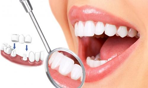 Cách xử lý răng mọc lệch bằng bọc răng sứ - ảnh