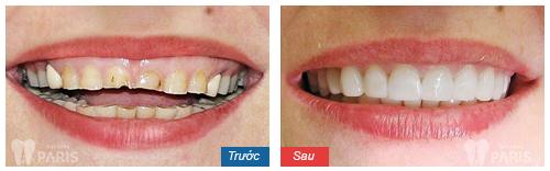 Răng xấu sửa như thế nào? ❝Khắc Phục❞ cho từng trường hợp cụ thể 11