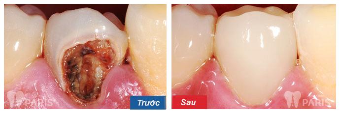 Răng xấu sửa như thế nào? ❝Khắc Phục❞ cho từng trường hợp cụ thể 12