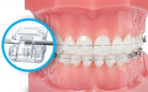 Các loại niềng răng và chi phí 2