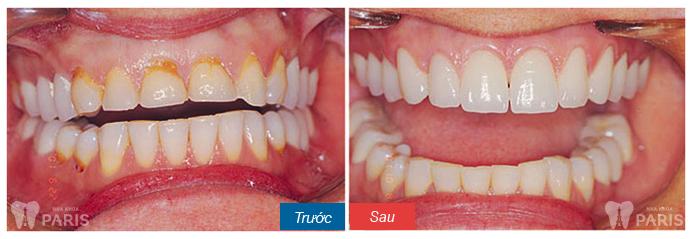 Răng xấu sửa như thế nào? ❝Khắc Phục❞ cho từng trường hợp cụ thể 13