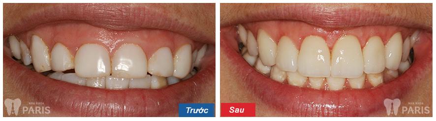 5 lưu ý giải pháp phẫu thuật cười hở lợi cho nụ cười ĐẸP tự nhiên 3