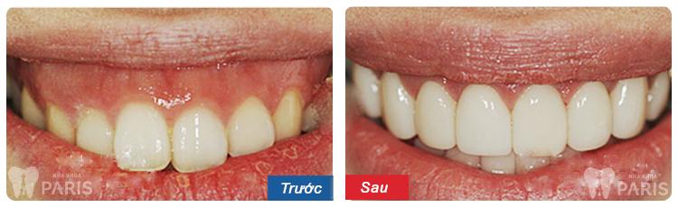 5 lưu ý giải pháp phẫu thuật cười hở lợi cho nụ cười ĐẸP tự nhiên 2