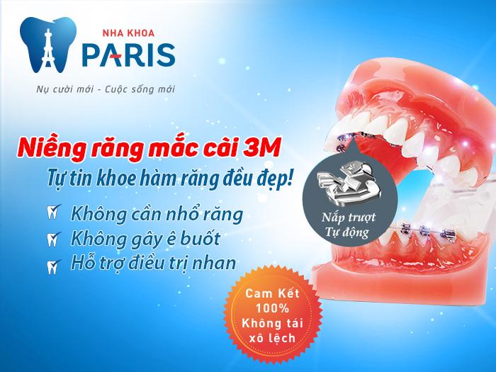Niềng răng hô hiệu quả hơn nhờ công nghệ 3M UGSL áp dụng tại Paris