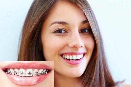 Niềng răng giá bao nhiêu? - 3 yếu tố chi phối giá niềng răng 1
