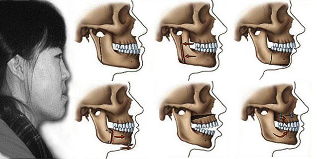 Răng móm là gì? BS Tư vấn 2 cách chữa trị triệt để nhất năm 2017 1