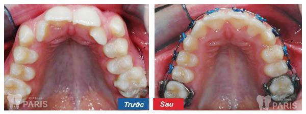 Hình ảnh KH sử dụng dịch vụ chỉnh nha cố định 1 hàm tại nha khoa Paris