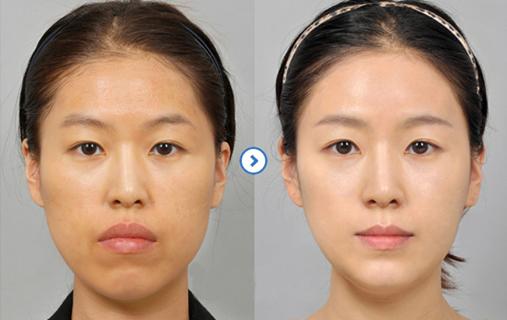 Phẫu thuật hàm hô Lefort I thay đổi khuôn diện chỉ sau vài giờ 9