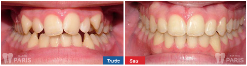 Niềng răng móm tại nha khoa Paris sẽ rút ngắn được 6 tháng so với các phương pháp khác