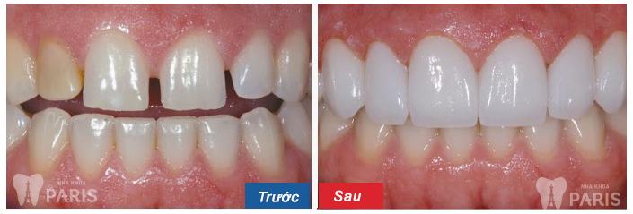 Khách hàng thực hiện niềng răng thưa thành công tại nha khoa Paris