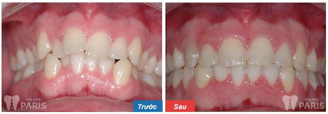Khách hàng thực hiện niềng răng khấp khểnh thành công tại nha khoa Paris