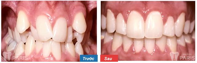 Khách hàng thực hiện niềng răng mọc chen chúc thành công tại nha khoa Paris