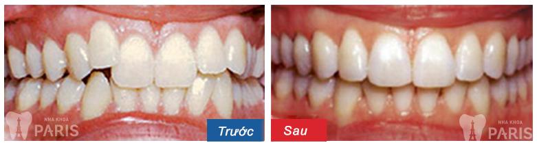 Khi nào cần niềng răng? | Các trường hợp nên niềng răng tốt nhất - ảnh 5