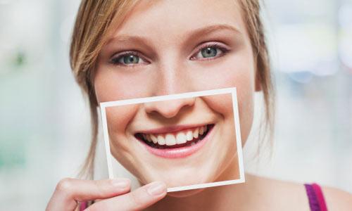 Bật Mí: 2 cách chữa răng hô tại nhà được nhiều người sử dụng 2