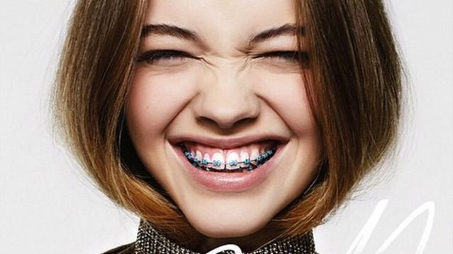 Bật Mí: 2 cách chữa răng hô tại nhà được nhiều người sử dụng 1