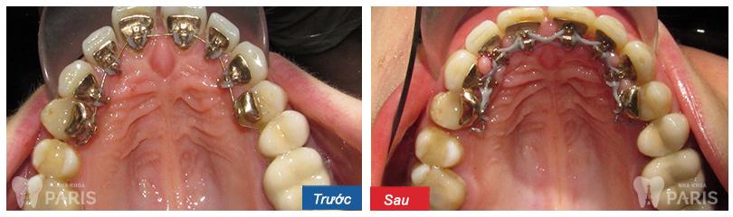 Ưu nhược điểm của niềng răng mặt trong là gì? niềng răng ở đâu? 2