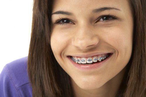Niềng răng khểnh mất bao lâu - phương pháp nào tốt nhất 2
