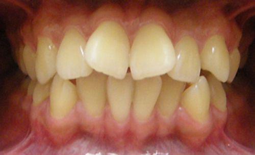 Răng thẳng hàng đều ĐẸP tự nhiên với kỹ thuật niềng răng cửa 1
