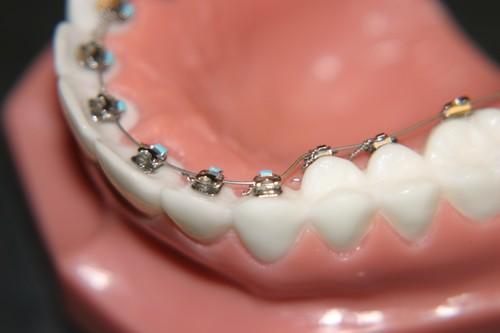 Thẩm mỹ vượt trội với phương pháp niềng răng mặt trong